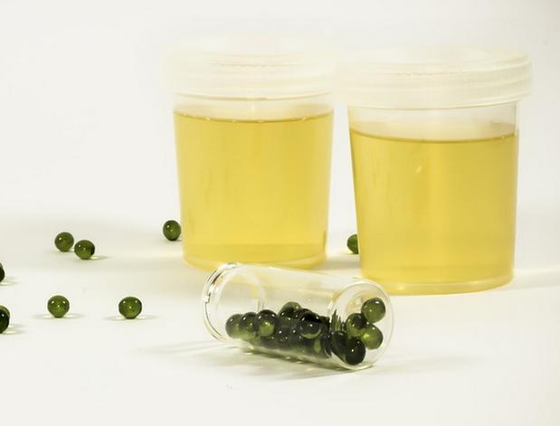 bottled urine